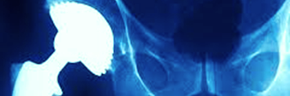 medical implants page image