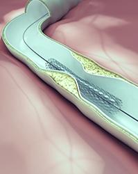 medical implant image